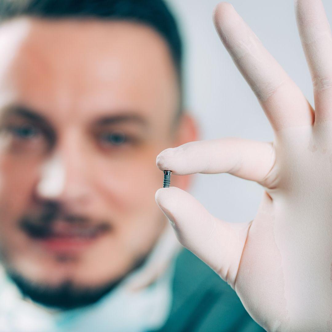 """Дентальная имплантация - вживление имплантов зубо, стоматология Тольятти """"Зубочистка"""""""