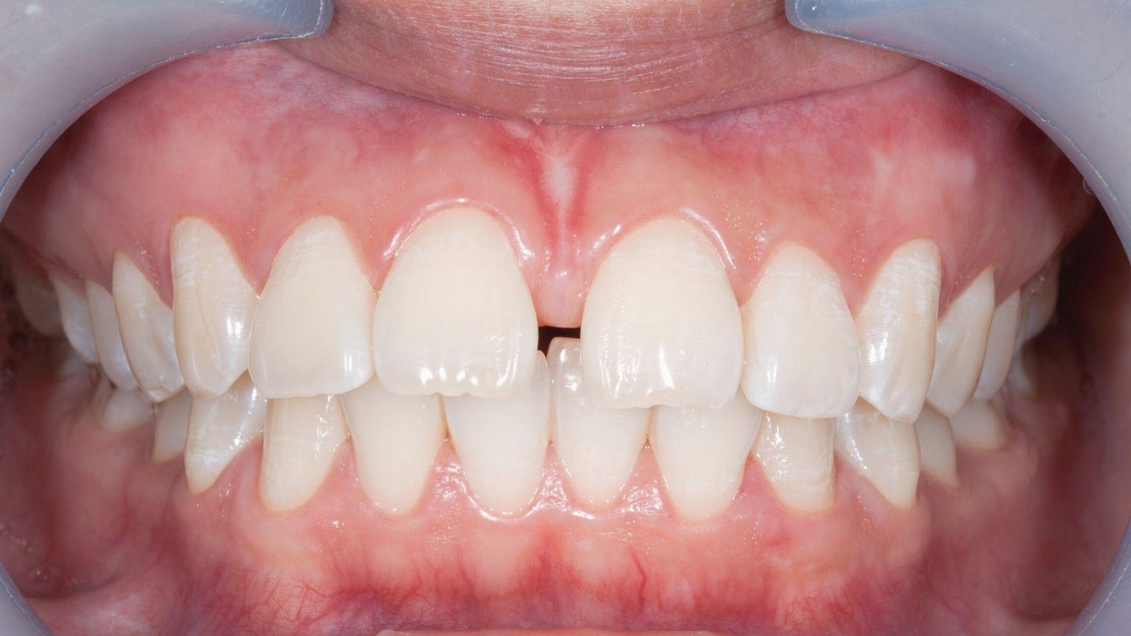 """Как убрать щель между передними зубами? Тремы и диастемы зубов - успешное лечение и исправление в стоматологии """"Зубочистка"""" доктора Кузьменко"""
