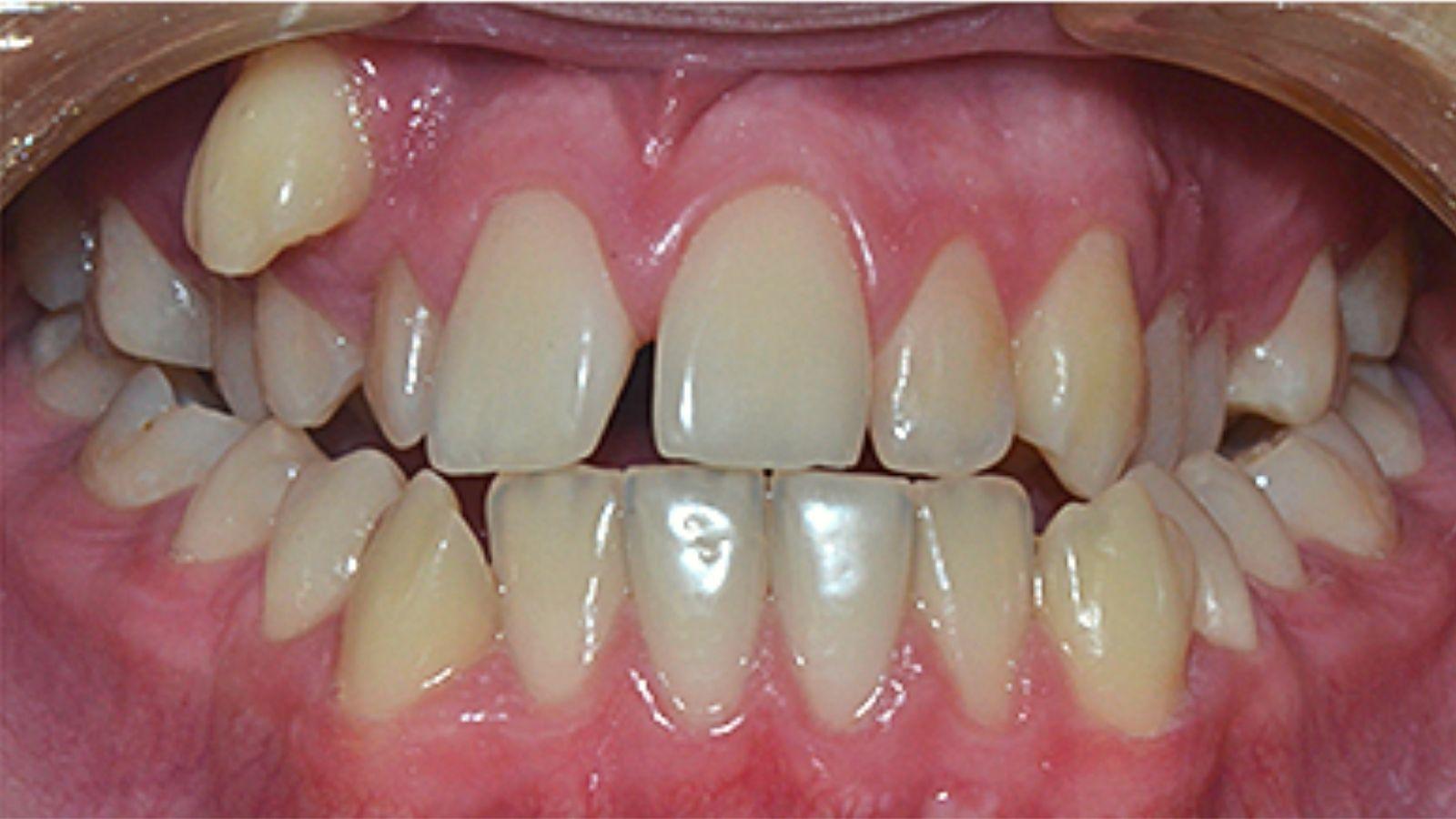 """Дистопия зуба - лечение и исправление в стоматологии """"Зубочистка"""" доктора Кузьменко"""