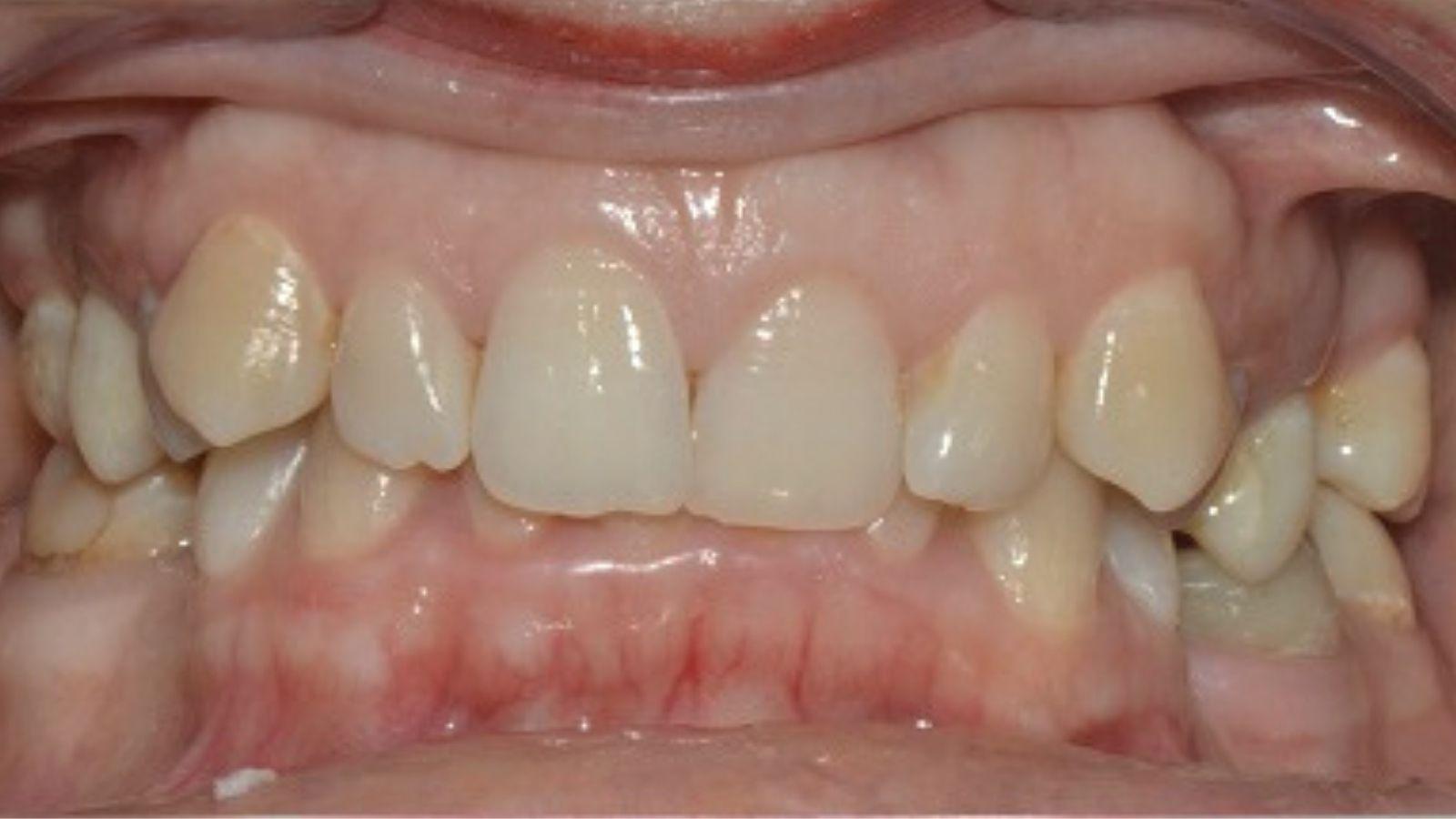 """Лечение глубокого прикуса - стоматология """"Зубочистка"""" доктора Кузьменко"""