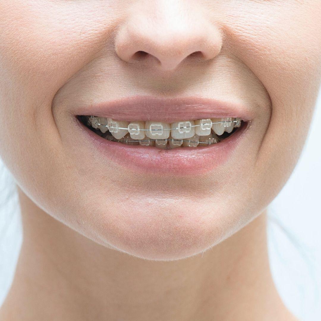 """Неправильный прикус вперед - лечение в стоматологии """"Зубочистка"""" доктора Кузьменко"""