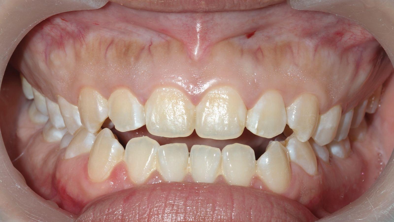 """Открытый прикус - лечение в стоматологии """"Зубочистка"""" доктора Кузьменко"""