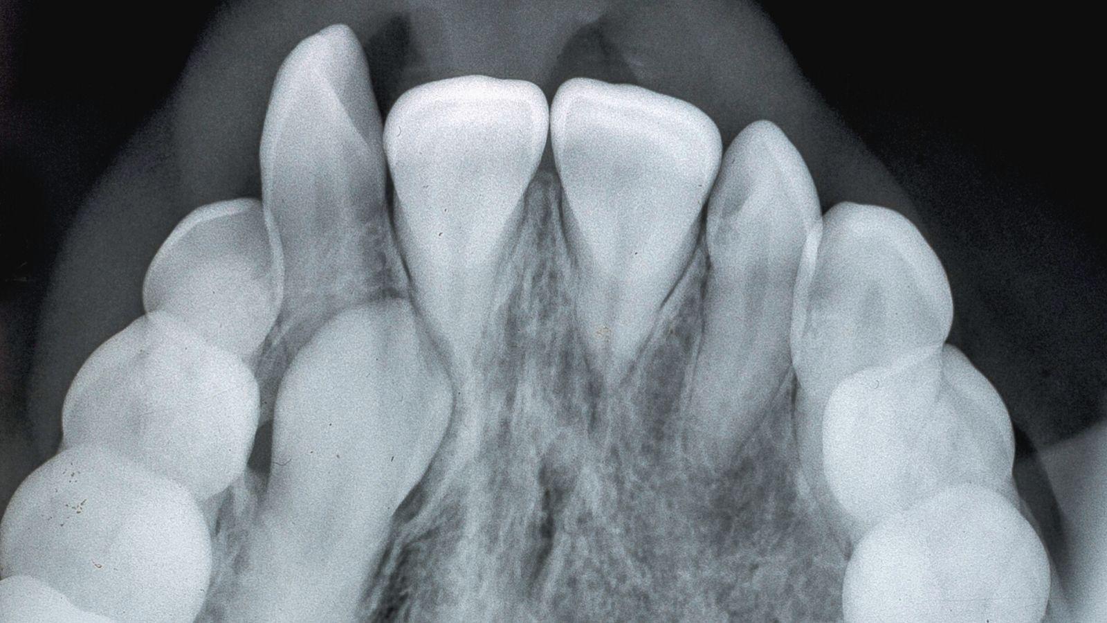 """Ретинированный зуб - лечение и удаление в стоматологии """"Зубочистка"""" доктора Кузьменко"""