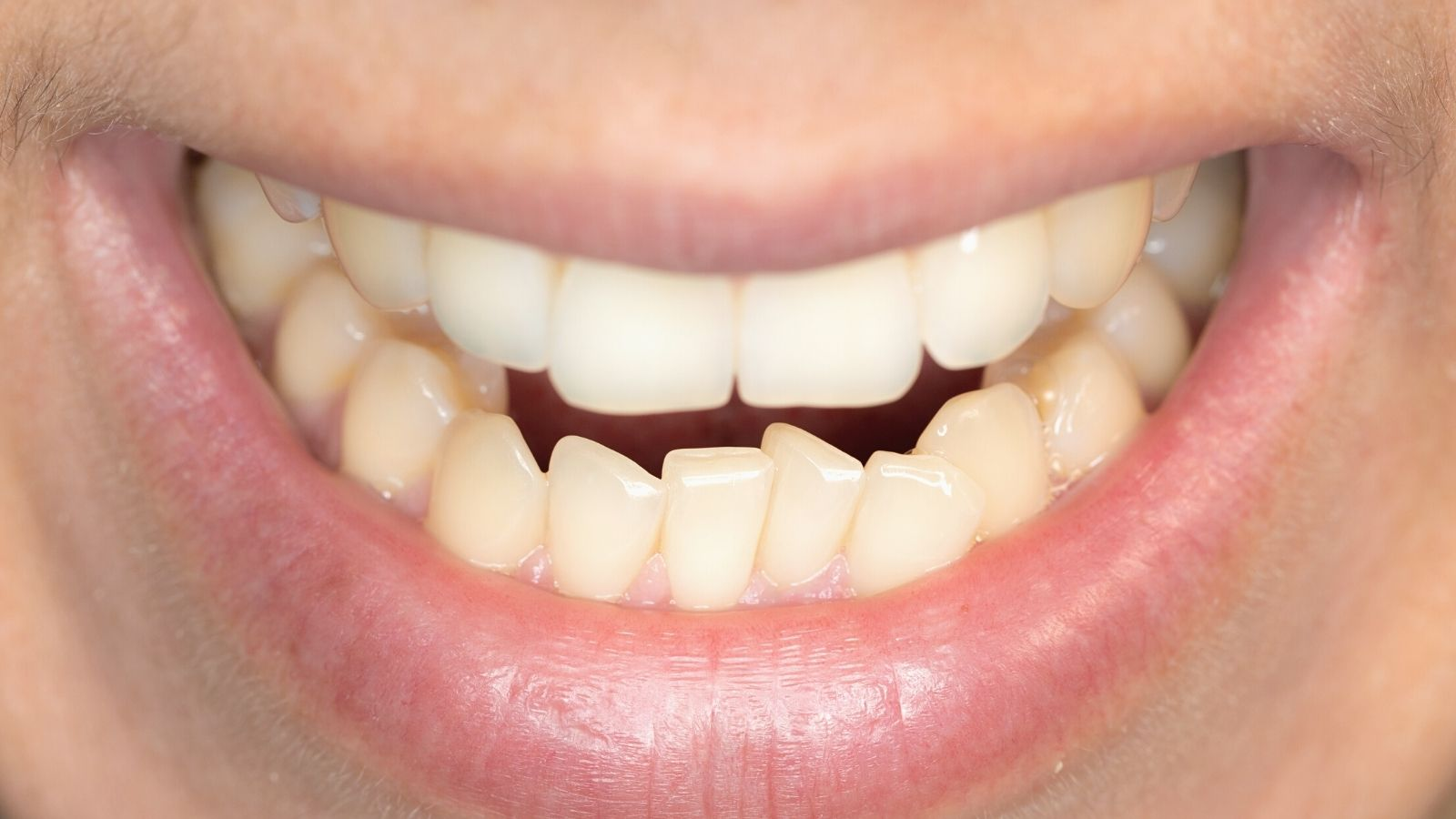 """Cкученность нижних зубов - лечение в стоматологии """"Зубочистка"""" доктора Кузьменко"""