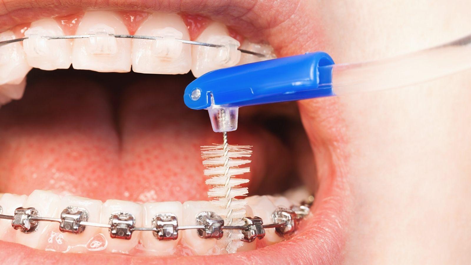 """Профессиональный уход за зубами в брекетах в стоматологии """"Зубочистка"""" доктора Кузьменко"""